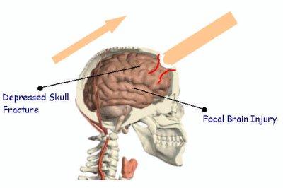 Soft Head Penetrating 33